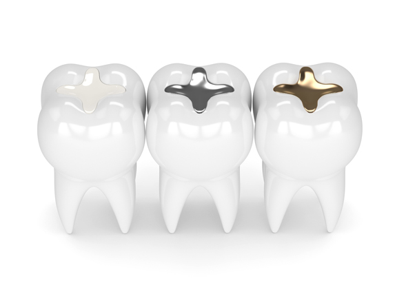 Who Is A Good Candidate For Dental Fillings.jpg