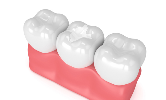 Why Are Dental Fillings Needed.jpg